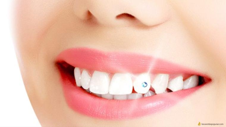 štetnosti zubnog nakita