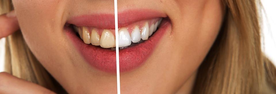 Dental sandblasting - restoring old shine and teeth whitening