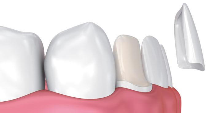 Sve što trebate znati o ljuskicama za zube