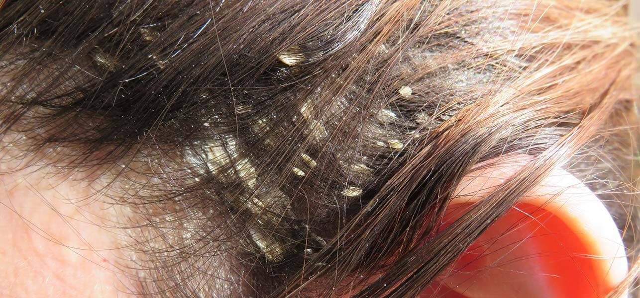 Say Goodbye To Dandruff With These Amazing Product