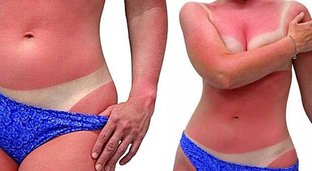 SOS Tips for Reducing Sunburn